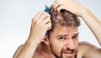 Dökülen Saçlar Nasıl Tekrar Geri Gelir?