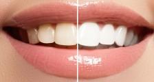 Diş Beyazlatmak için Ne Yapılabilir?