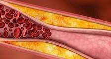 Kolesterol Seviyeleri Nasıl Düşürülür?