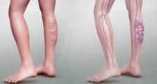 Derin Ven Trombozunun (DVT) Önlenmesine Yardımcı Olacak Diyet İpuçları