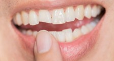 Kanal Tedavisi Yapılan Diş Kırılırsa Ne Yapılır?